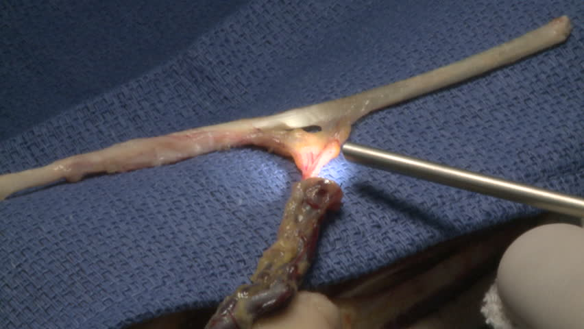 surgery in an operating room/Use of a contact endoscope and record HD