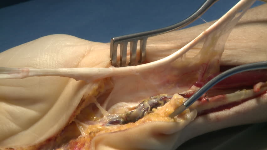 surgery in an operating room/repair surgery of a finger tendon