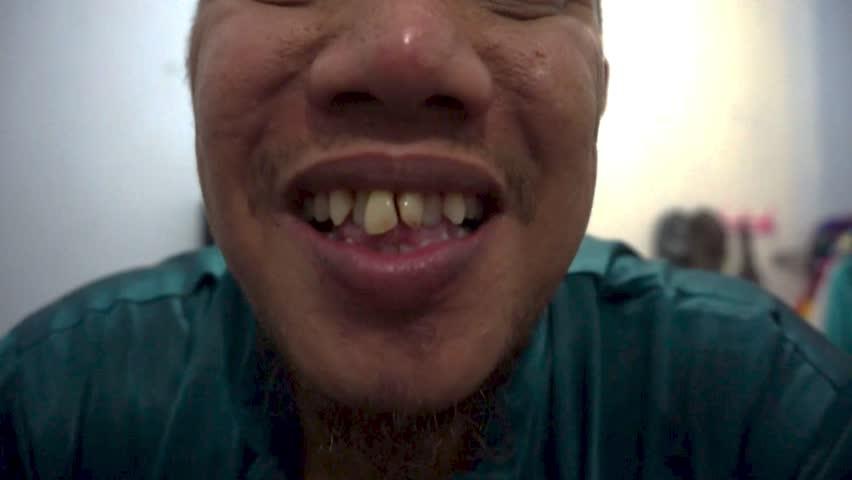 Closeup portrait of showing broken teeth. - HD stock video clip