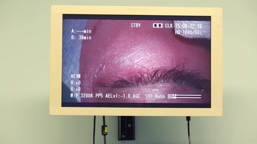 Display with closeup view of eye during ophthalmic surgery