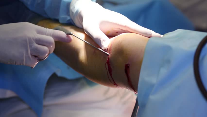 Hands of doctor and knee with cut and blood during surgery