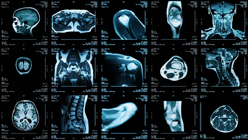 Multiple MRI video wall. Black and white. Loopable. Locked down. 2 videos in 1 file. Composite video showing multiple MRI images including: head, neck, arm, foot, pelvis, etc.