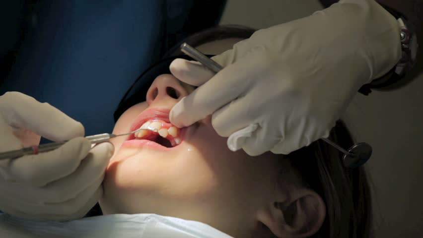 Young girl having her teeth cleaned at a dentist's office. - HD stock footage clip