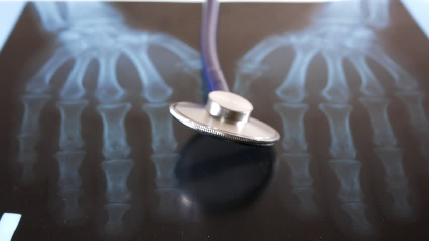 The stethoscope lies on the x-ray of the hands. Close-up   Shutterstock HD Video #25229591