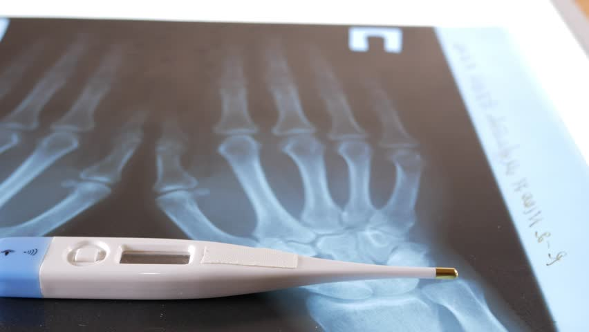 An electronic thermometer lies on the x-ray of the hands. Close-up   Shutterstock HD Video #25229663