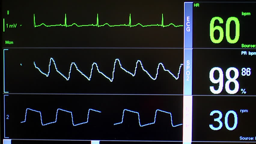 Close up of patient monitor displays vital signs - EKG, oxygen saturation (SPO2) respiration and blood pressure. - HD stock footage clip