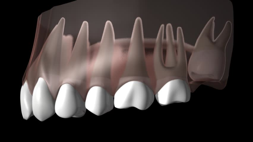Side view of 3D perspex zoom upper gums and teeth showing growth of wisdom tooth displacing other teeth then being removed  | Shutterstock HD Video #3593654