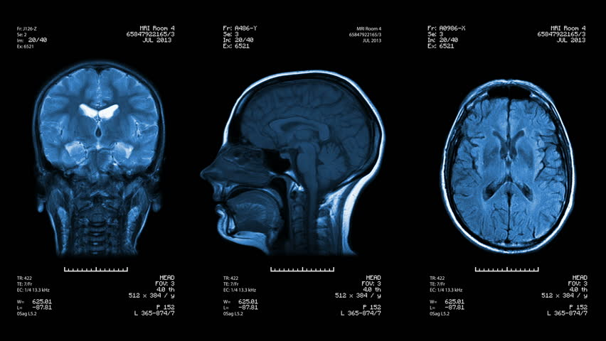 Three head views of MRI scan. Loopable. Blue. See more color options in my portfolio. | Shutterstock HD Video #4412879