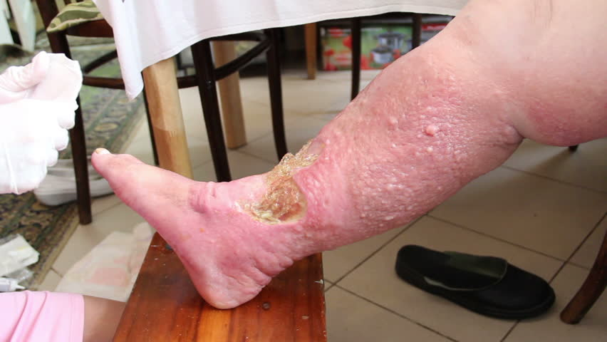 Wound - venous ulcer, stasis ulcers, varicose ulcers, ulcus cruris. 5