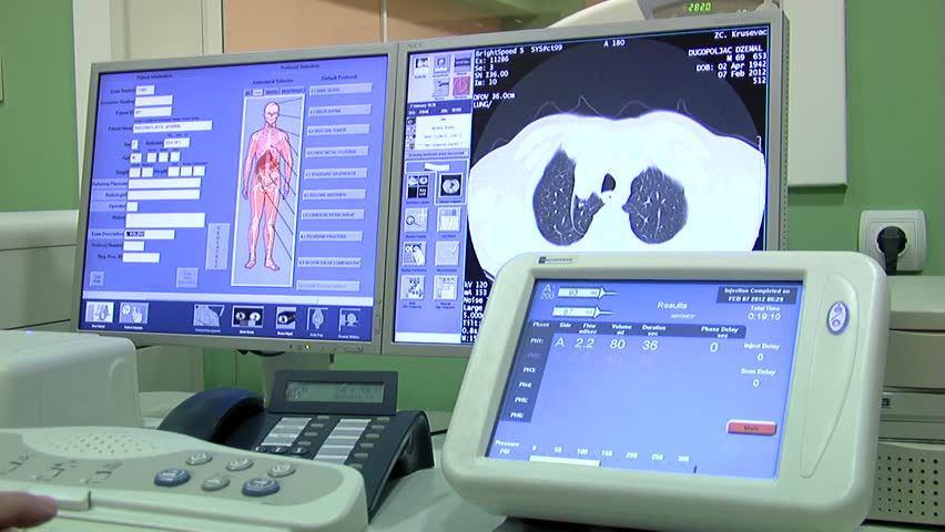 Hospital scanner, patient review,data changing  to screen, close up. - HD stock video clip