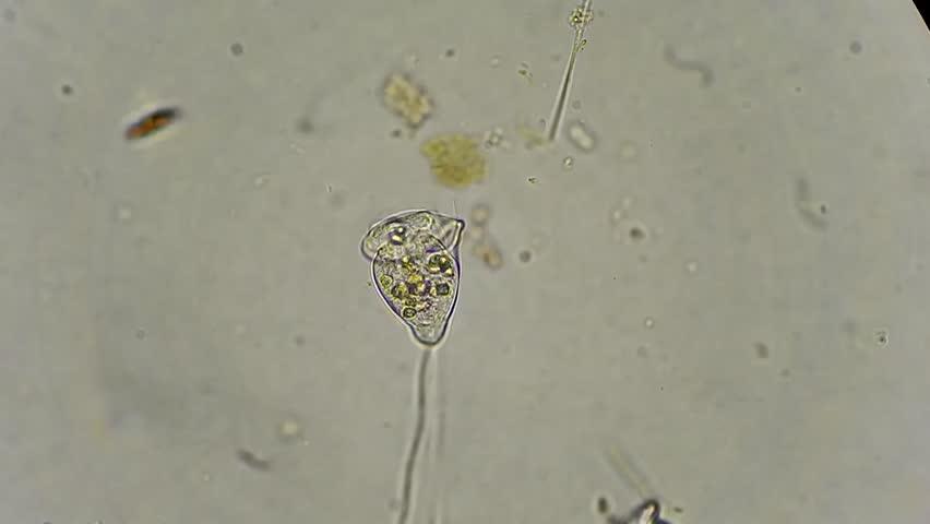 Live Unicellular Vorticella Filtrating Water Under ...
