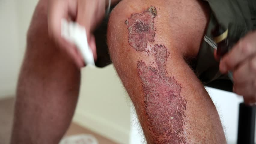 Stock Video Footage Bandaged in surgery covering. Scab but the wound still wet, bleeding, self-service, insurance medicine. Man lubricates the wound with hydrogen peroxide and thinks