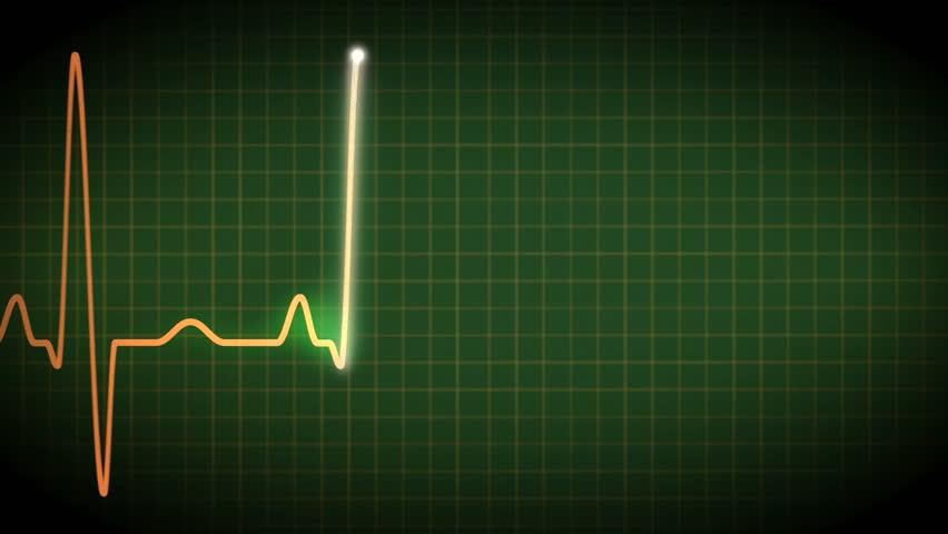 Atrial Fibrillation Ecg Loopable Stock Footage Video