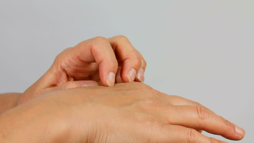 Woman scratches itchy insect bite on her hand with fingernails. 1080p
